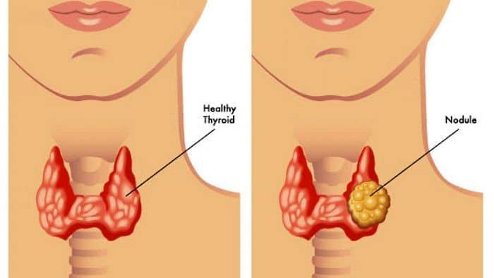noduli alla tiroide