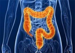 infiammazione colon ascendente
